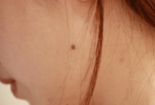 ほっぺたにほくろのある女性の画像
