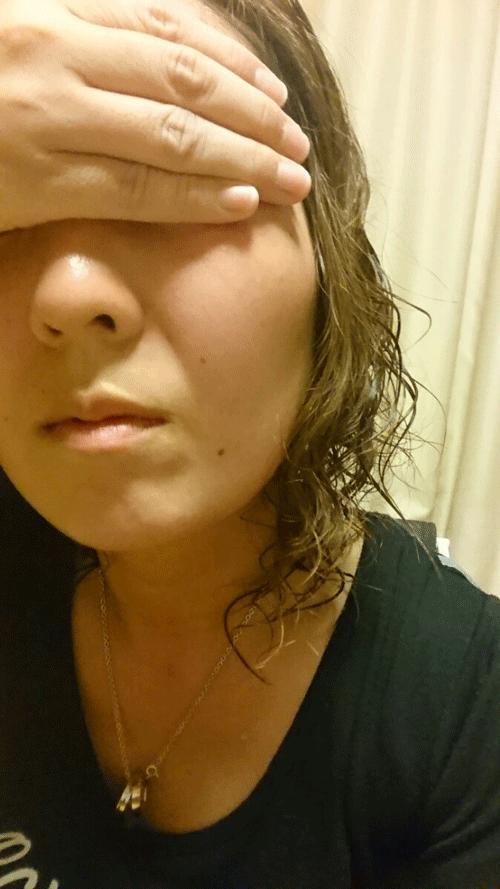 ピューローションオメガを使用してみた30代女性の顔写真