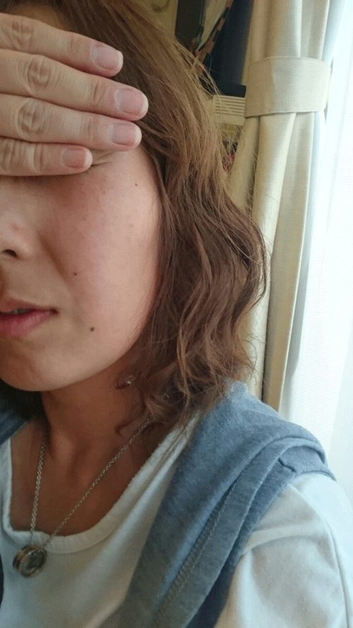 ピューローションオメガを使用した後の30代女性の顔写真