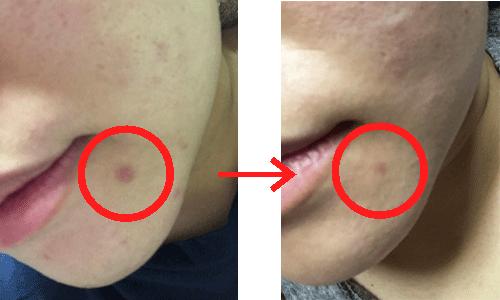 リプロスキンを使用する前と使用した後の比較写真